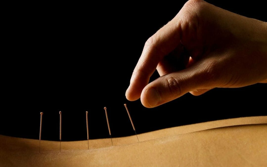 dry needling in columbus, physical therapy in canal winchester, blacklick, columbus